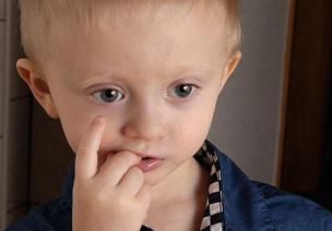 3~6岁儿童常见心理问题—咬指甲