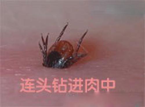 幼儿被蜱虫咬伤后的应急措施