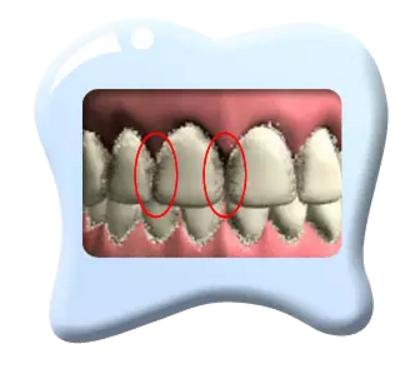 幼儿牙齿保护,从0岁开始!
